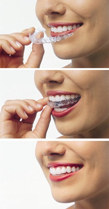 Invisalign being removed